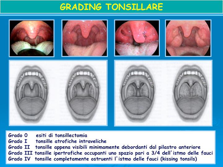 Apnea e Russamento Studio Dentistico Roma Prati Dott.ssa Sonia La Volpe