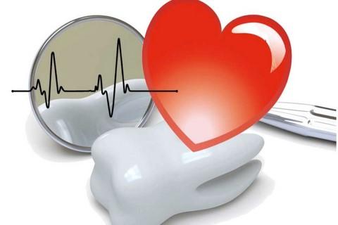 Malattie Cardiovascolari e Parodontite