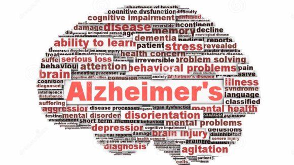 Malattia di Alzheimer e Denti