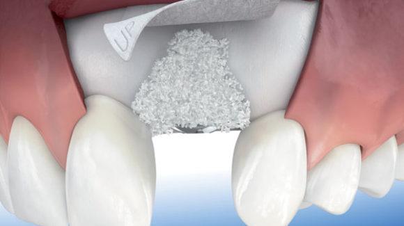 Denti estratti: innesto autologo
