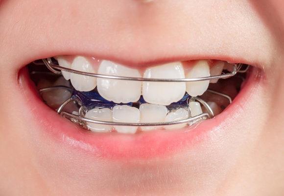 Denti dritti Bambini